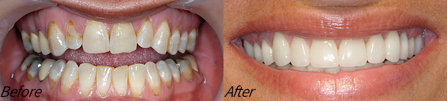 Before and After Photos at Vecchio Dental Care in Rockford, IL