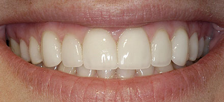 After Veneers at Vecchio Dental Care in Rockford, IL